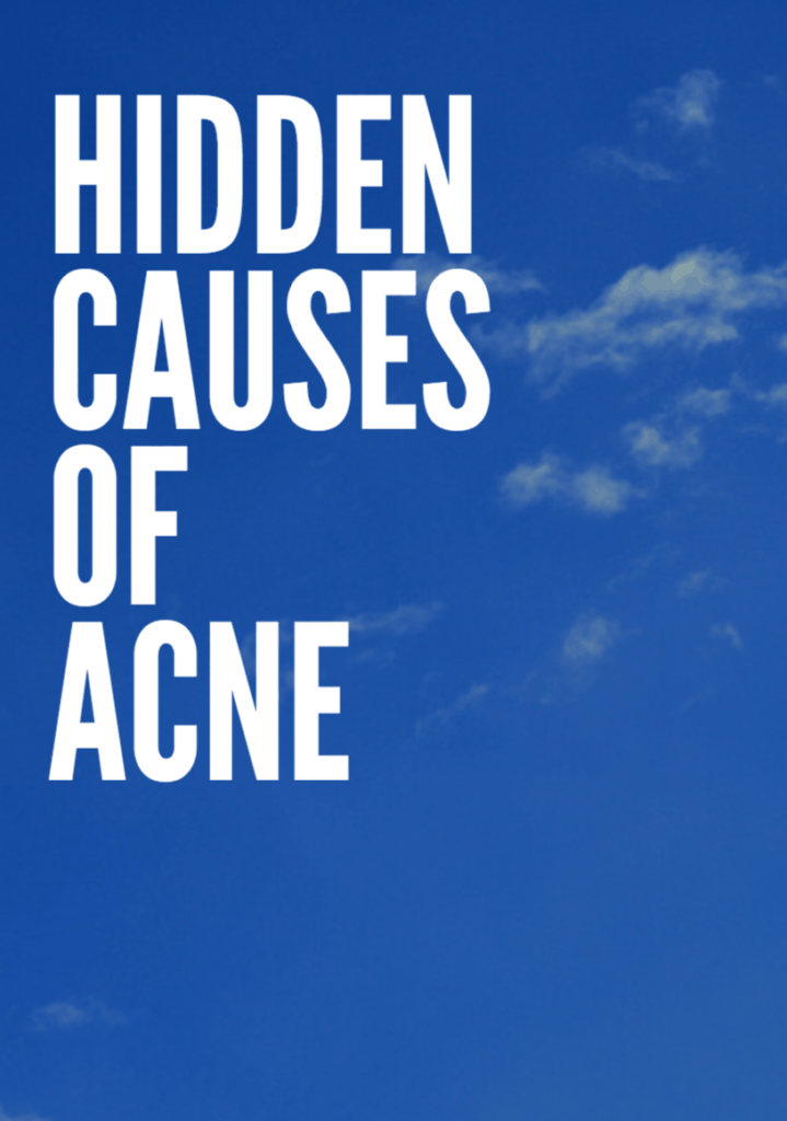 HIdden Causes of Acne