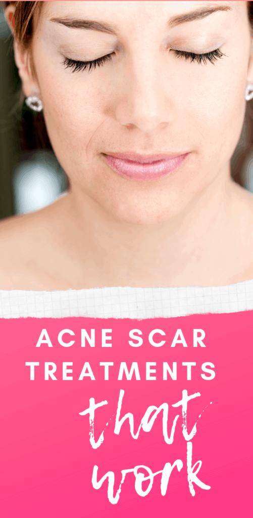 Acne Scar Treatments That Work