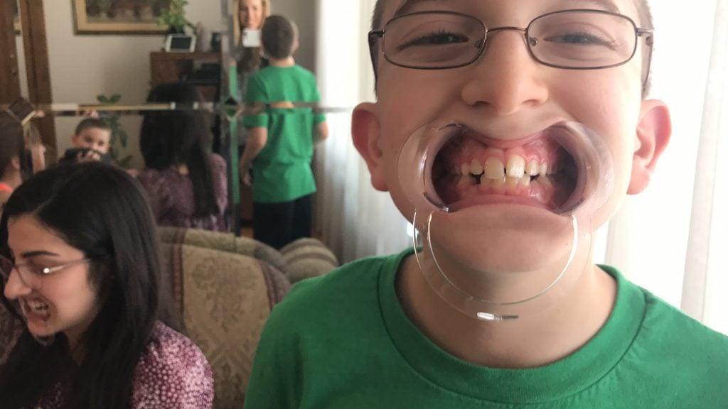 Watch Ya Mouth: The MouthGuard Game